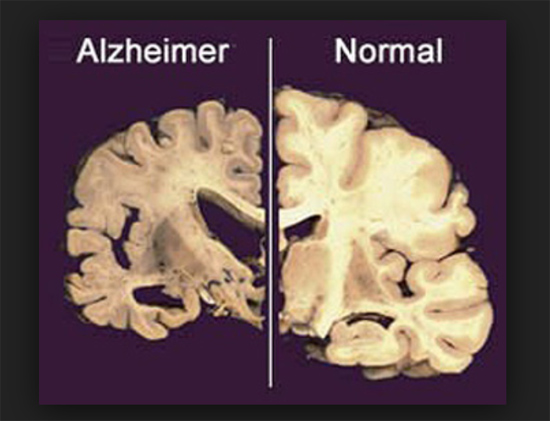 Alzheimer cerebro normal y enfermo