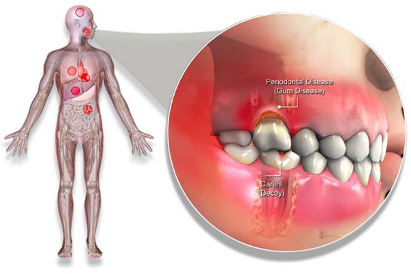 Diabetes y periodontitis
